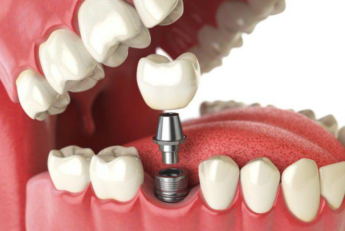 Servicio gratuito de odontología y cirugía oral (Granada)