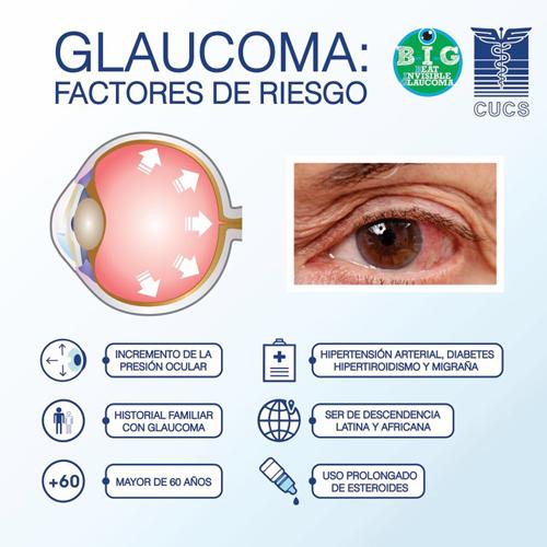 Revisiones GRATIS en 23 ópticas de Navarra para prevenir el glaucoma