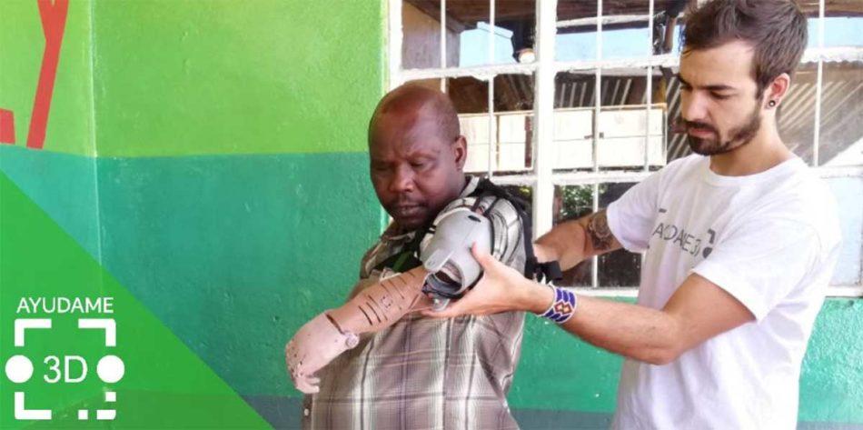 Protesis GRATUITAS a personas sin recursos